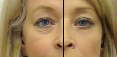 podočnjaci prije i poslije tretmana